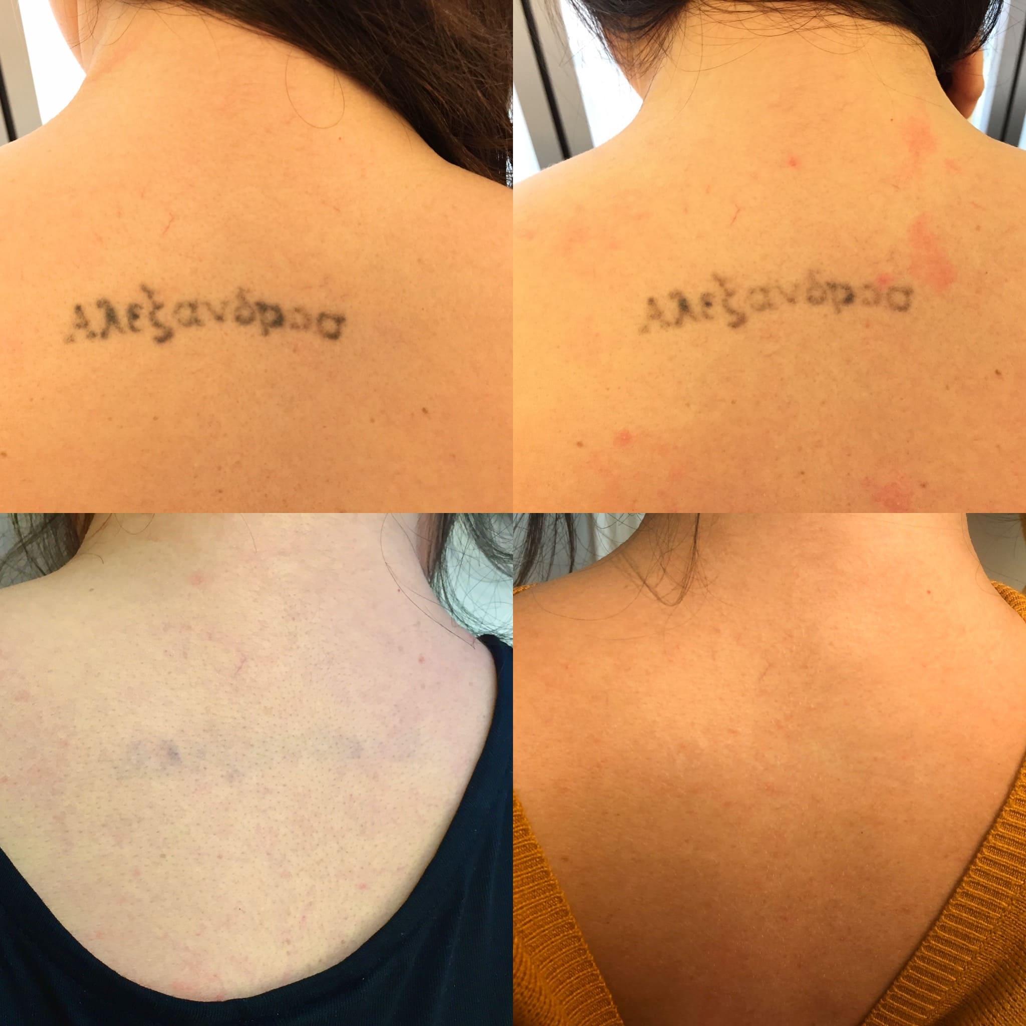 Domande frequenti sulla rimozione tatuaggi - Rimuovere ...